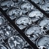 Depresja niszczy mózg?